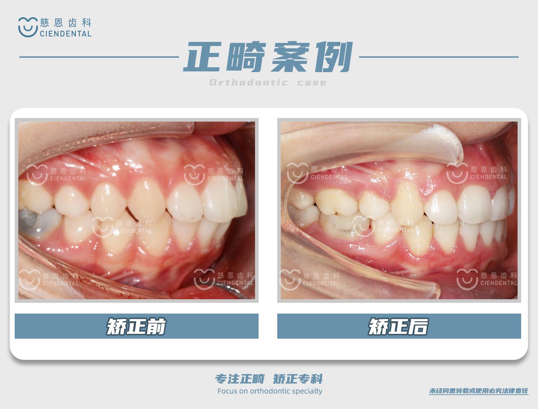 杨林医生牙齿矫正案例
