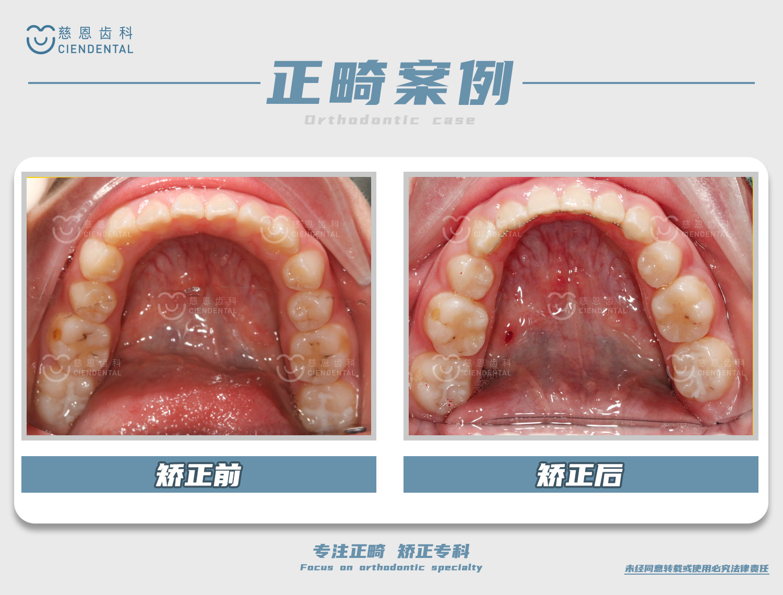 张雄英医生牙齿矫正案例