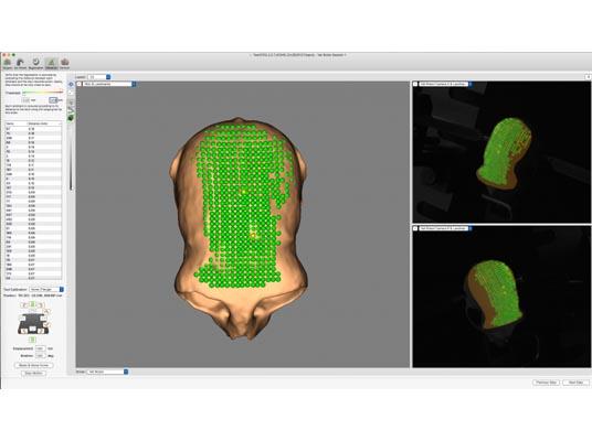 非人灵长类动物手术机器人- BrainSight