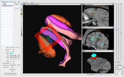 Brainsight猴脑导航系统