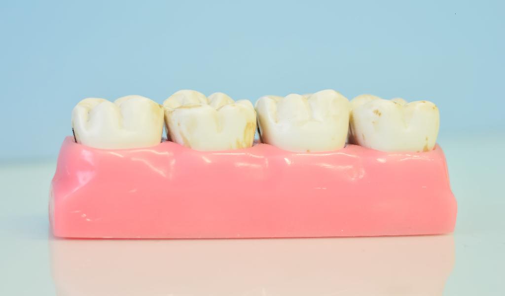 在深圳口腔医院做种植牙的体验