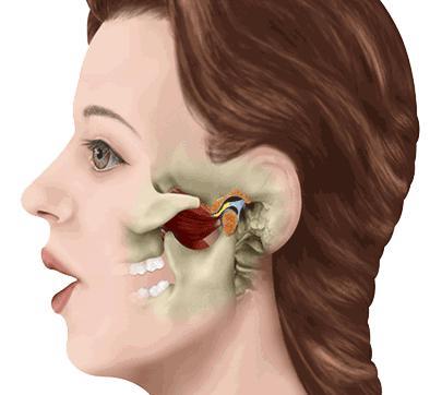 颞下颌关节紊乱症可以牙齿矫正吗