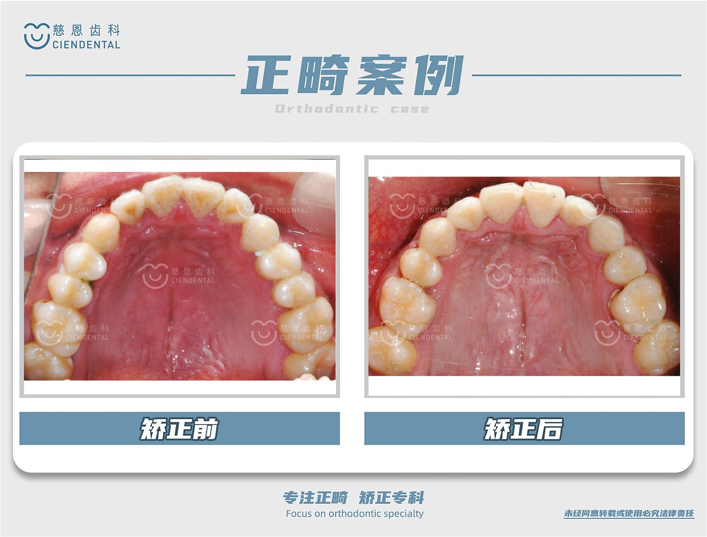 严丽谊医生牙齿矫正案例