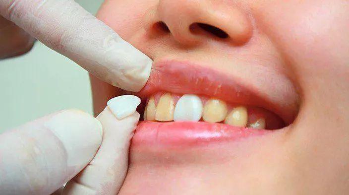 在深圳牙齿美白的方法