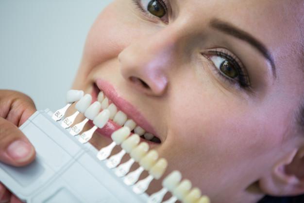 在深圳牙科医院做牙齿贴面的优势