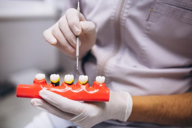 深圳口腔医院治疗氟斑牙