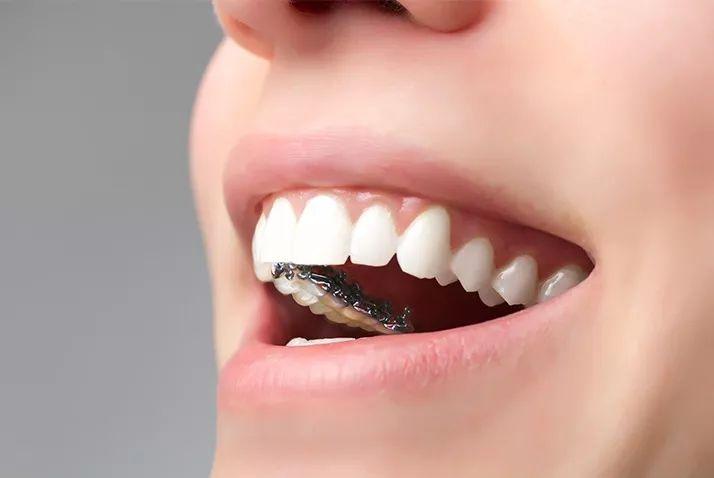 深圳牙齿矫正技术