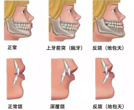"""在深圳牙齿矫正的""""黄金期"""""""