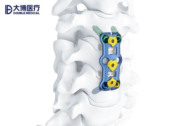 金属脊柱接骨板系统