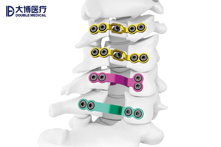 椎板固定板系统