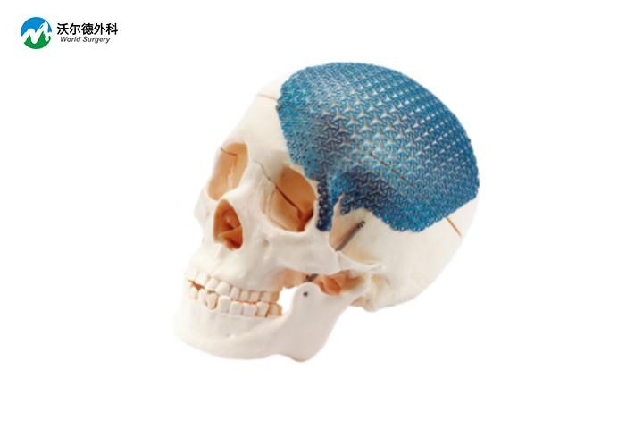 颅骨网板及螺钉系统