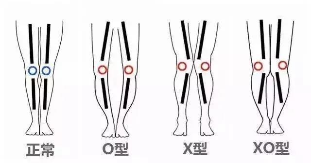 关爱孩子的足部健康|给孩子做一次全面的步态检测吧!