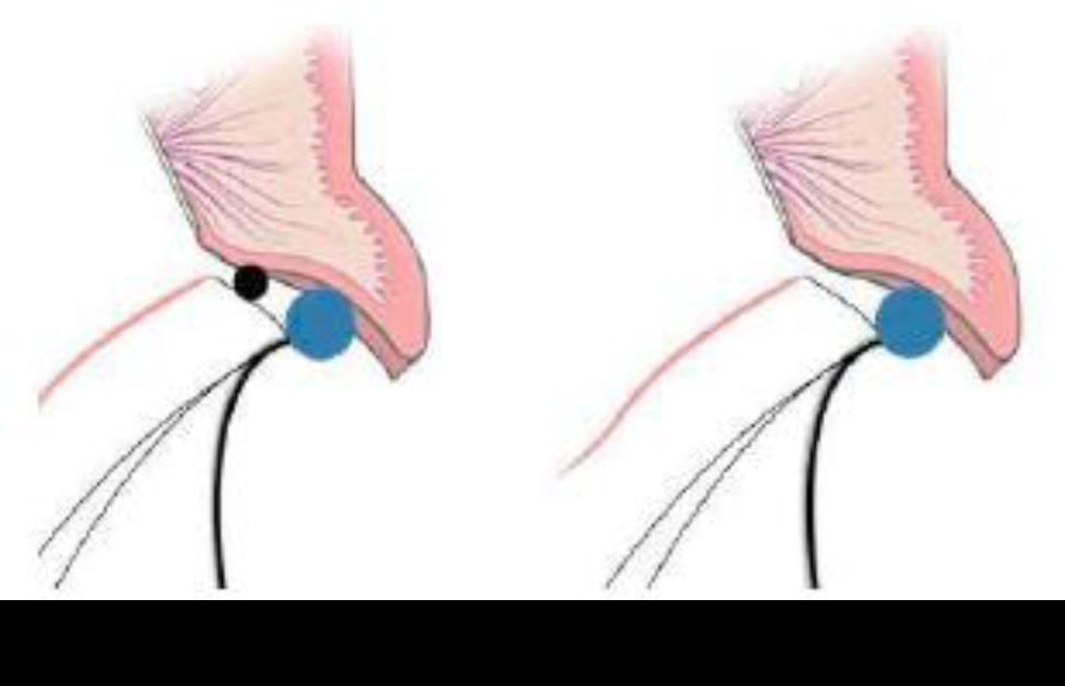 i500-如何使用口内扫描仪在修复治疗中获取清晰的龈下边缘数据