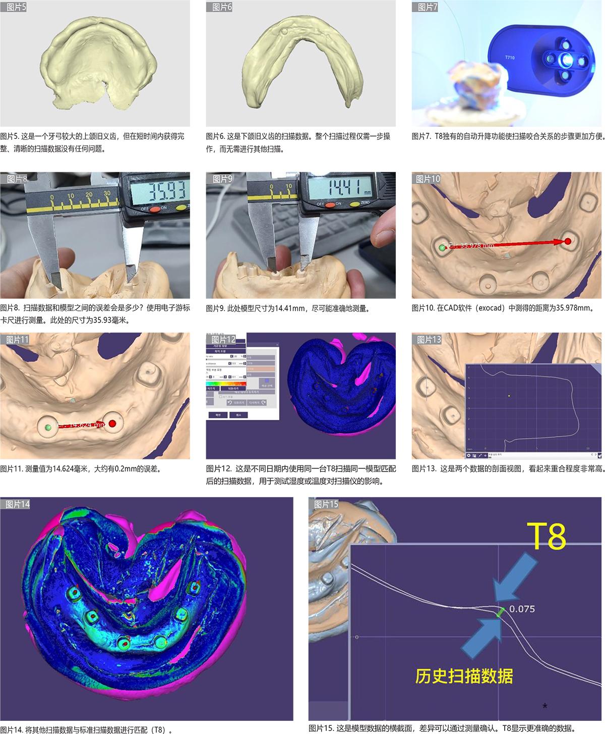 T8-口腔数字化技工所中扫描仪和扫描数据的重要性研究