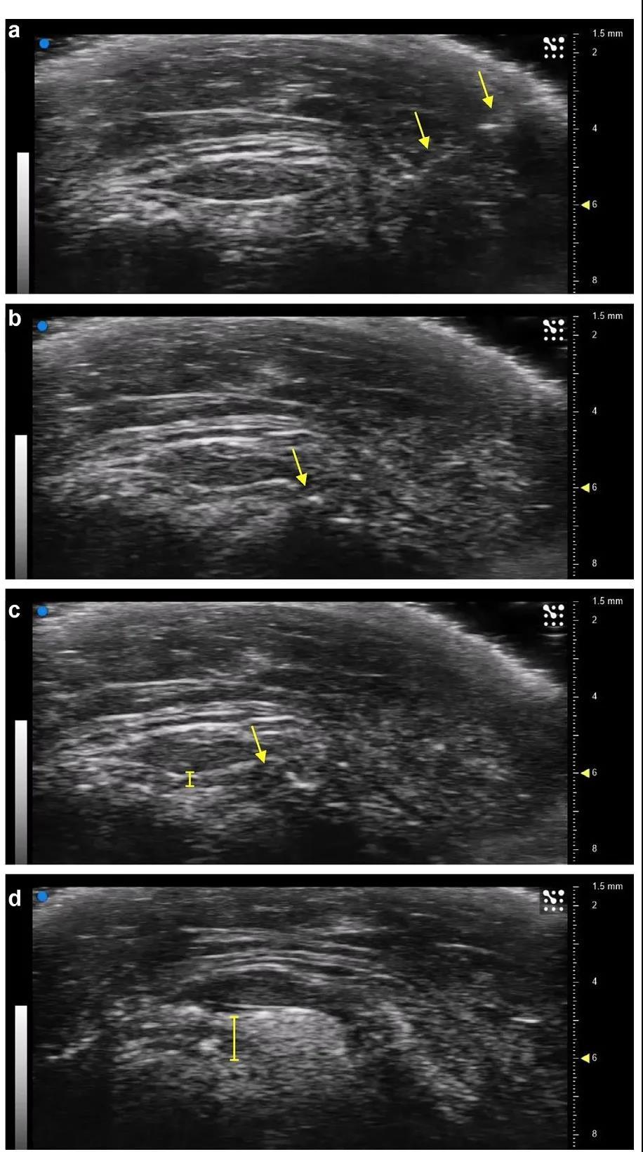 超声引导膝关节精确给药