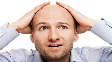 男人为什么容易秃顶?