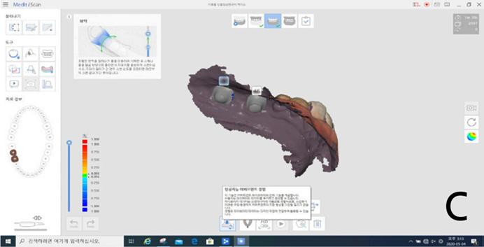 i500-在种植基台水平数字化印模制取中智能基台匹配算法的运用