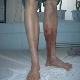 亚澳科普角 | 静脉炎—下